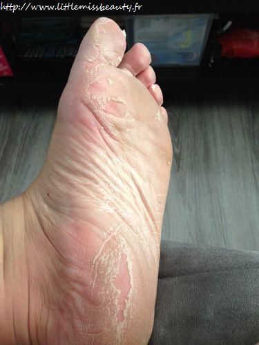 peeling des pieds